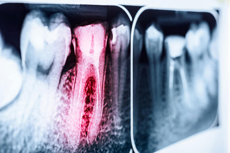 歯内療法の成績を改善する抗菌ゲルの開発 米国インディアナ大学の画像です