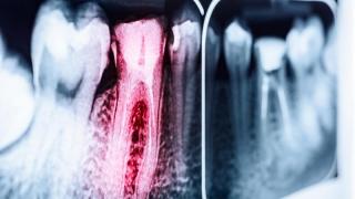 歯内療法の成績を改善する抗菌ゲルの開発 米国インディアナ大学