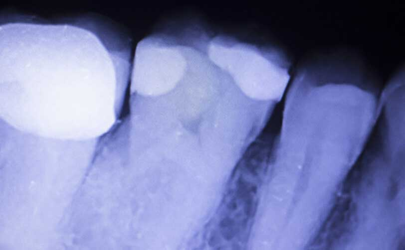【歯科医師統計】成人の偶発的露髄への対処