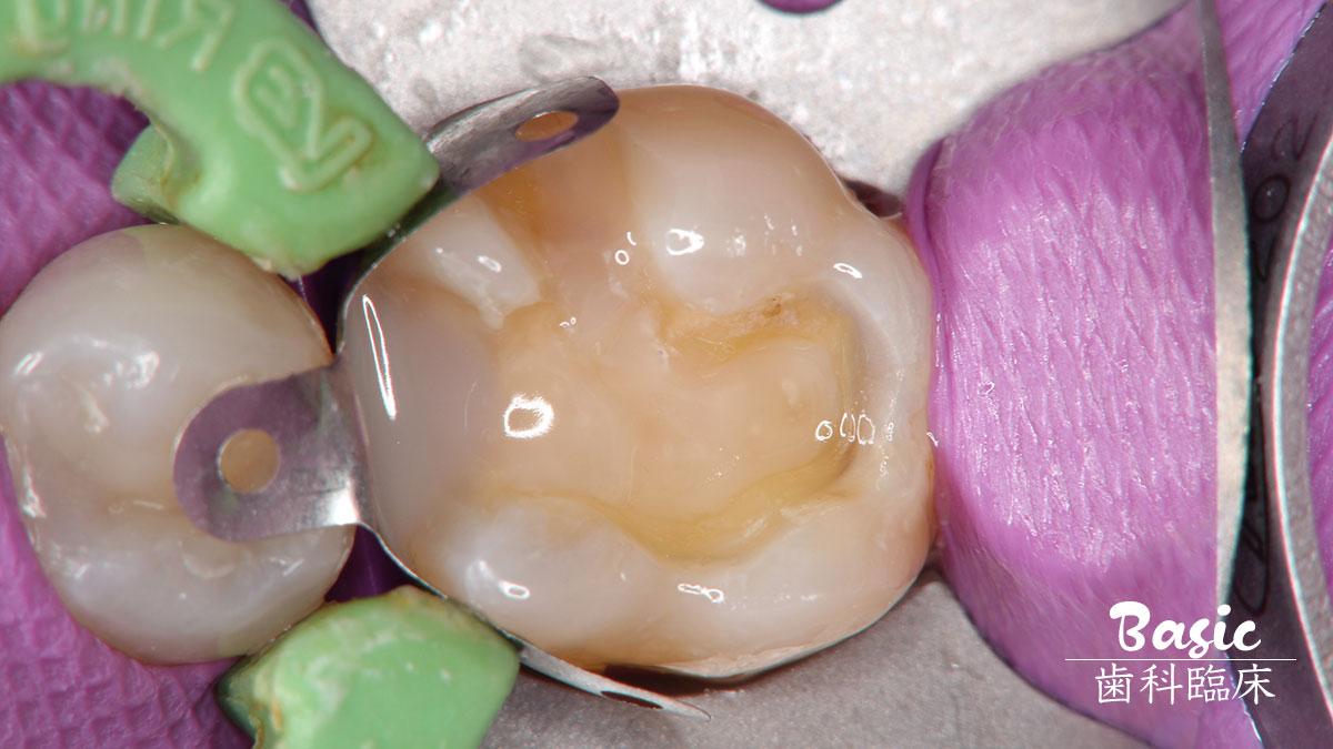 効率と確実性を両立させるコンポジットレジン修復 その3【隣接面を含む臼歯部窩洞修復編】の画像です