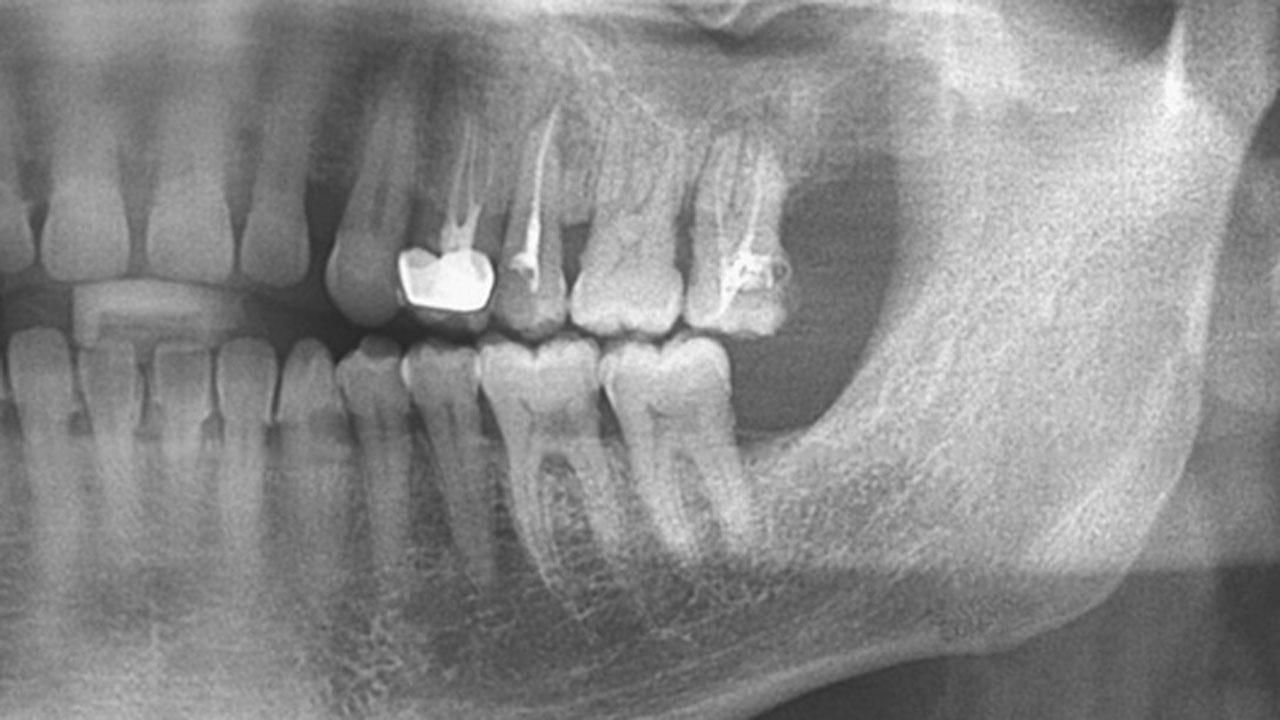 ビスホスホネート系薬剤関連顎骨壊死の予防薬候補の発見 九州大の画像です