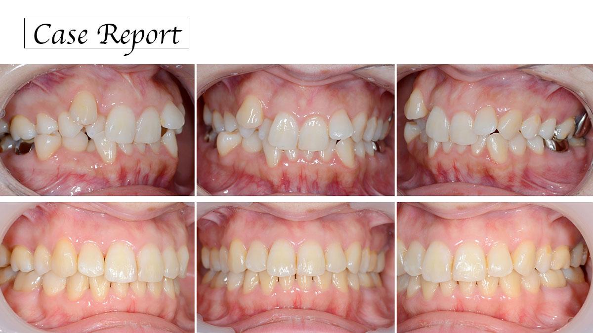歯列不正への対応 〜患者のリスクと適応力をどう治療に反映させるか〜の画像です