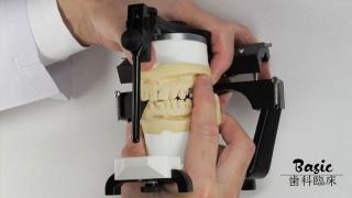 咬合器の基本をマスターして咬合干渉がない補綴物を製作しようの画像です