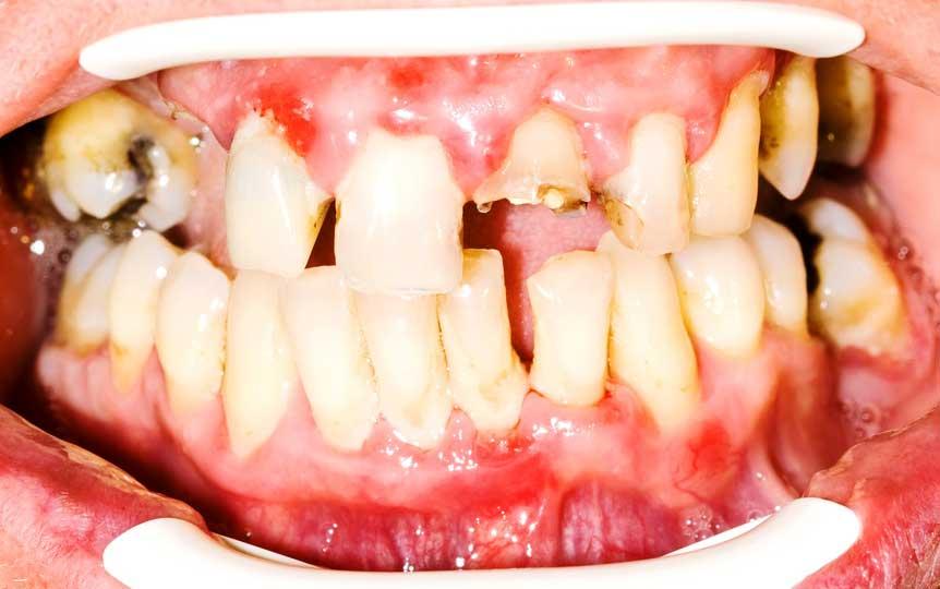 骨粗鬆症治療と歯周病の関係 米国 〜日本歯科医療への示唆〜の画像です