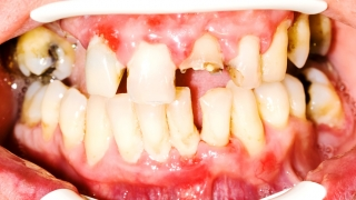 骨粗鬆症治療と歯周病の関係 米国 〜日本歯科医療への示唆〜