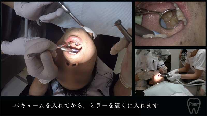 【顕微鏡歯科入門】ポジショニングとアシスタントワーク 第1回 右上臼歯部 の画像です