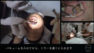 【顕微鏡歯科入門】ポジショニングとアシスタントワーク 第1回 右上臼歯部