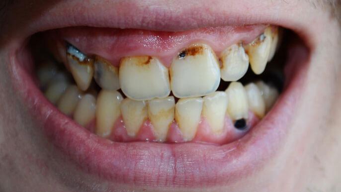 根面う蝕歯の9割に歯周病もしくは歯周病既往歴 サンスターの画像です