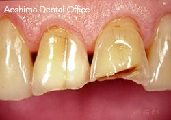 咬耗や酸蝕の症例、あきらめていませんか?の画像です