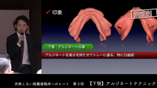 松丸 悠一先生『失敗しない総義歯臨床へのヒント』第3回 〜下顎アルジネートテクニック〜