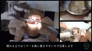 【顕微鏡歯科入門】ポジショニングとアシスタントワーク 第4回 右下臼歯部