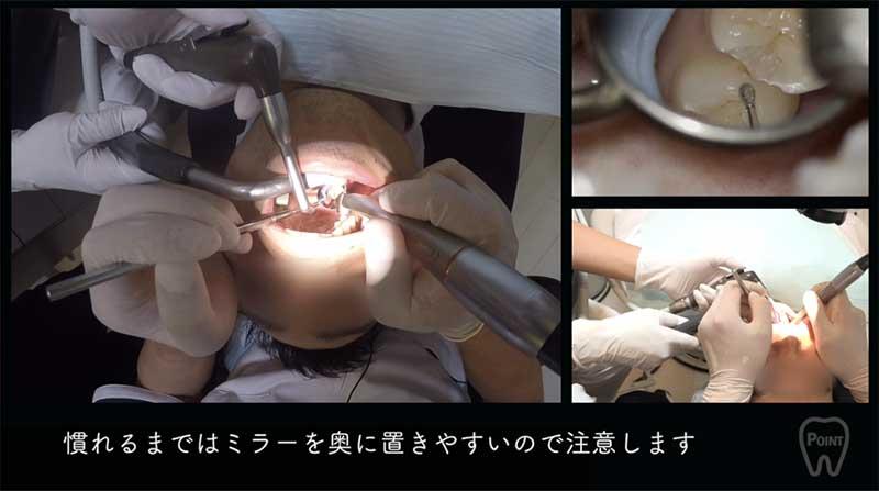 【顕微鏡歯科入門】ポジショニングとアシスタントワーク 第4回 右下臼歯部の画像です