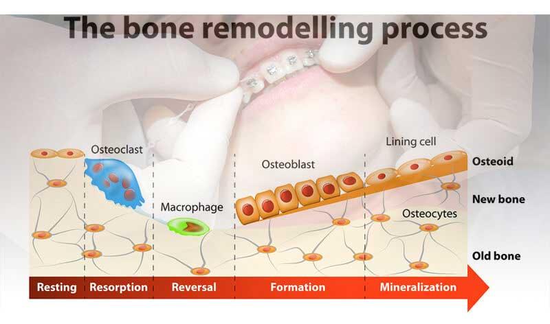 矯正治療における歯牙移動のキーとなる細胞を同定  東京医科歯科大の画像です
