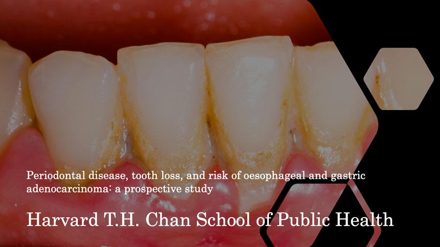 歯周病と食道癌・胃癌の関連性について 米国ハーバード大学の画像です