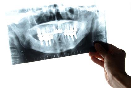 米国コロンビア大学歯周病科でのインプラント教育 第3回「出張治療指導について」の画像です