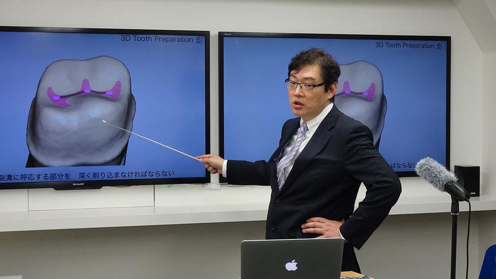 WHITECROSS Live 窪田努先生「デジタル時代だからこそ学び直したい支台歯形成」の画像です