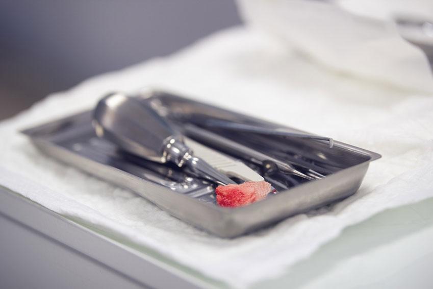 抜歯後の骨治癒を促進し炎症反応を制御する分子を発見 岡山大の画像です