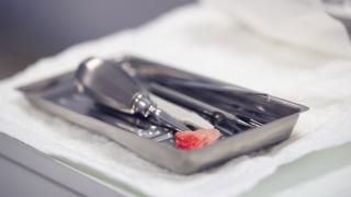抜歯後の骨治癒を促進し炎症反応を制御する分子を発見 岡山大