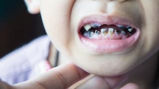 予知できない小児のう蝕についての新発見 スウェーデン
