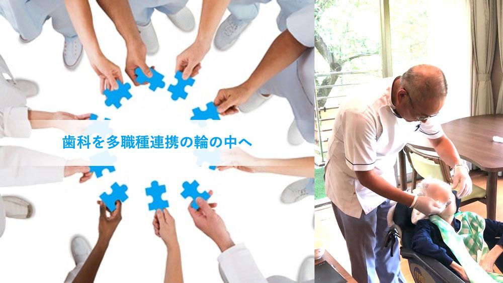 歯科を多職種連携の輪の中へ 「立川モデル」山下美登先生インタビュー 前編の画像です