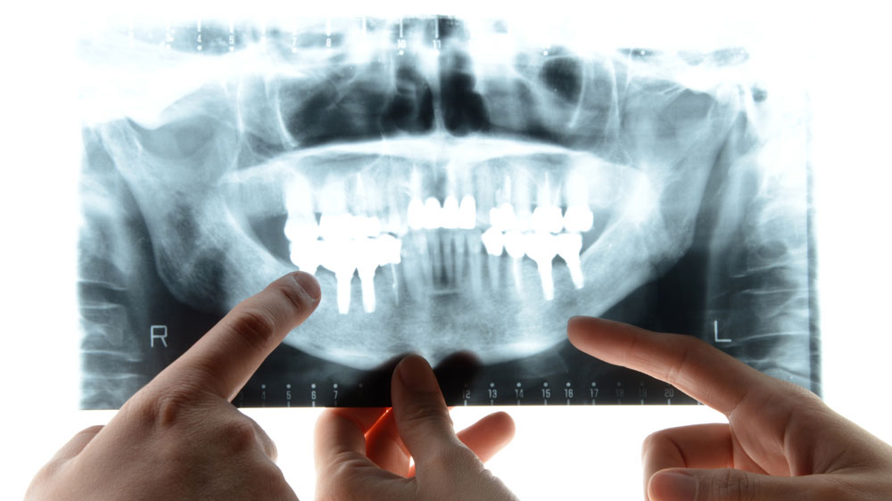 歯科エックス線をAIが読影。診断AIシステムが開発されるの画像です