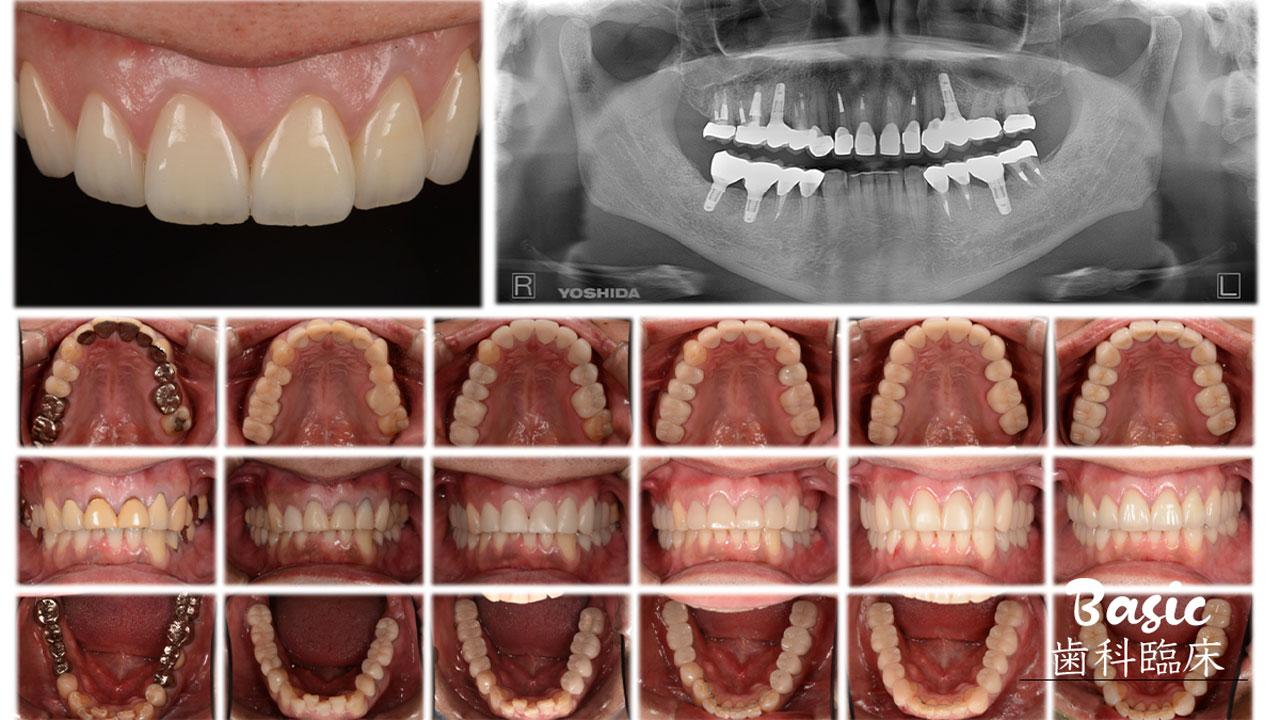 【赤坂会プロデュース】 日常臨床の診査・診断をアップグレードしよう③ 顎関節診査と模型診査をどう治療計画につなげるかの画像です
