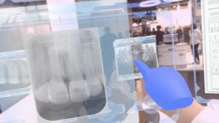 日本発のテクノロジーが切り開く歯科治療の最先端