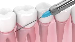 歯科衛生士による局所麻酔行為に対する見解 日本歯周病学会の画像です