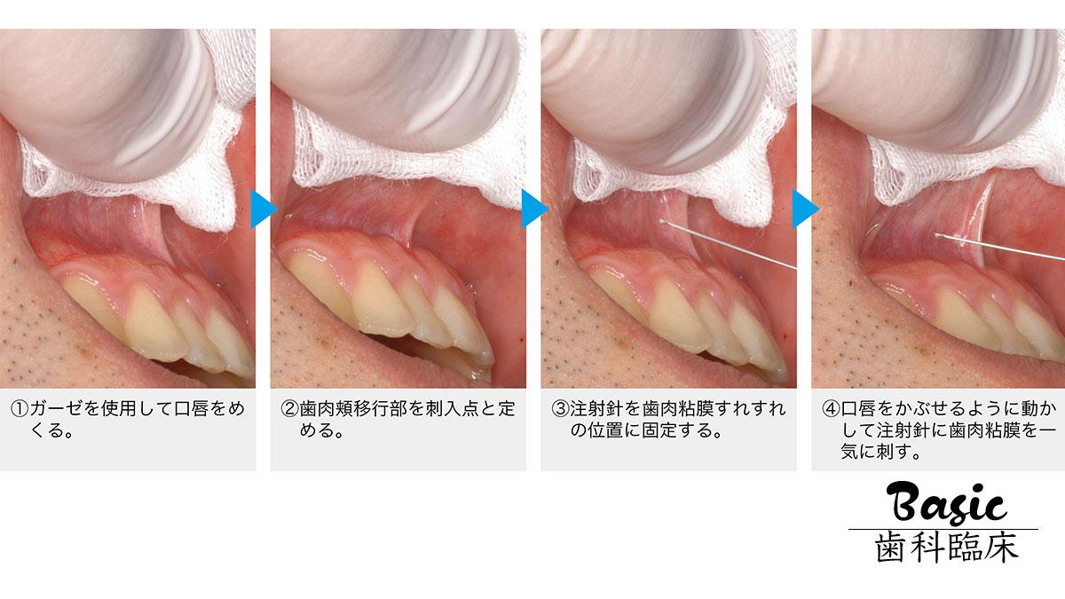 若手歯科医師必読!安全・安心・痛くない局所麻酔のポイントの画像です