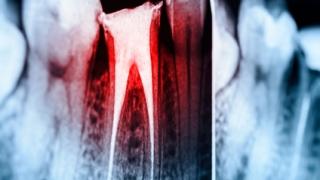6月15日ライブセミナー「世界基準の臨床歯内療法」 最終告知