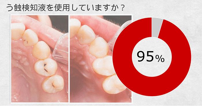 う蝕検知液の使用頻度-現役歯科医の9割が使用していると回答