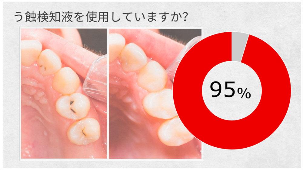 う蝕検知液の使用頻度-現役歯科医の9割が使用していると回答の画像です