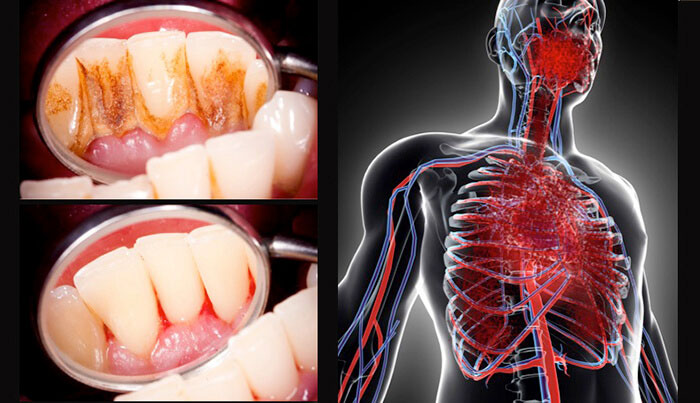 歯周病と全身疾患の関連性 〜健康寿命延伸のための対策〜の画像です