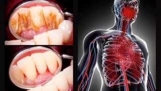 歯周病と全身疾患の関連性 〜健康寿命延伸のための対策〜