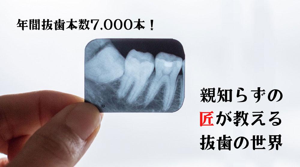 年間抜歯本数7000本! 親知らずの匠が教える抜歯の世界①「ホントは知らない親知らず」の画像です