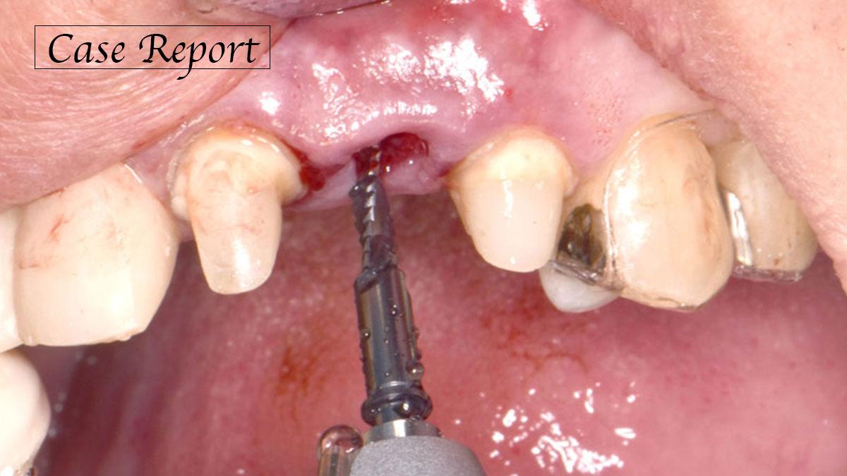 マイクロスコープを活用した即時埋入インプラントと、乳頭再建を伴う前歯部精密審美修復の画像です