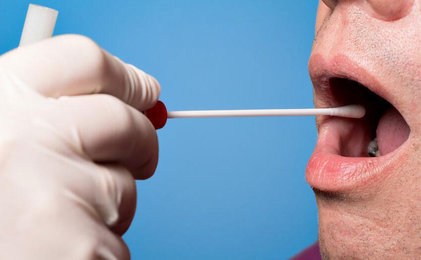 唾液診断は歯科の将来を変える可能性があるか?の画像です