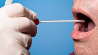 唾液診断は歯科の将来を変える可能性があるか?
