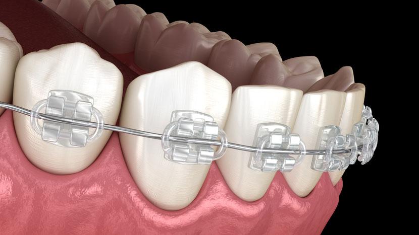 歯科矯正治療とう蝕予防の間に相関関係なし 豪州の画像です