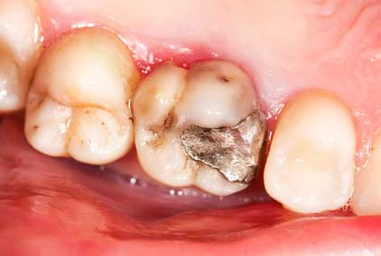 チューイングガムを活用した簡易な歯科検診の可能性 ドイツの画像です