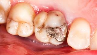 チューイングガムを活用した簡易な歯科検診の可能性 ドイツ