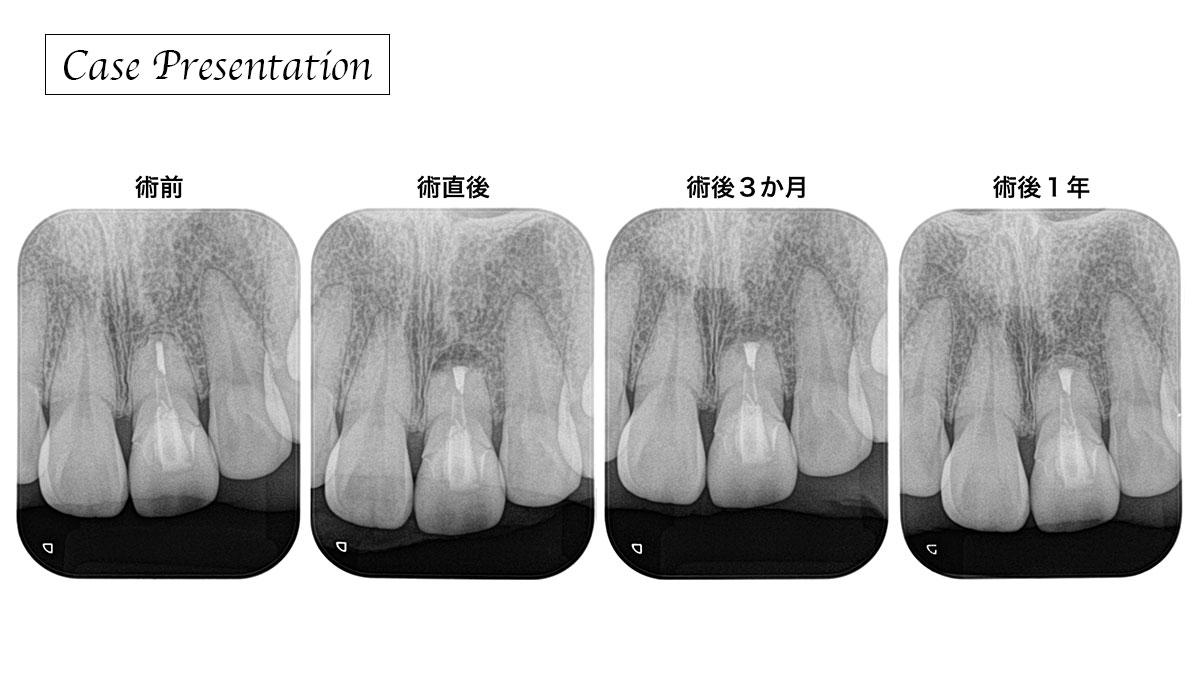歯内療法後に持続する不快症状(Apical fenestration)を改善した症例の画像です