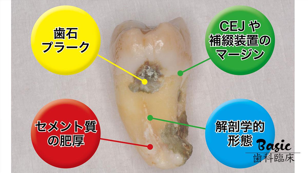 歯科医院の『歯周基本治療力』をアップしよう! 第1回「根面探知」編の画像です