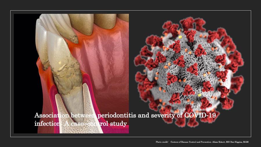 歯周病と新型コロナウイルスの重症化の関連性について カタールの画像です