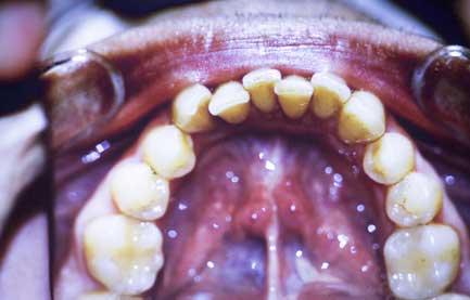 歯周病と肝硬変における死亡率の関連性 の画像です