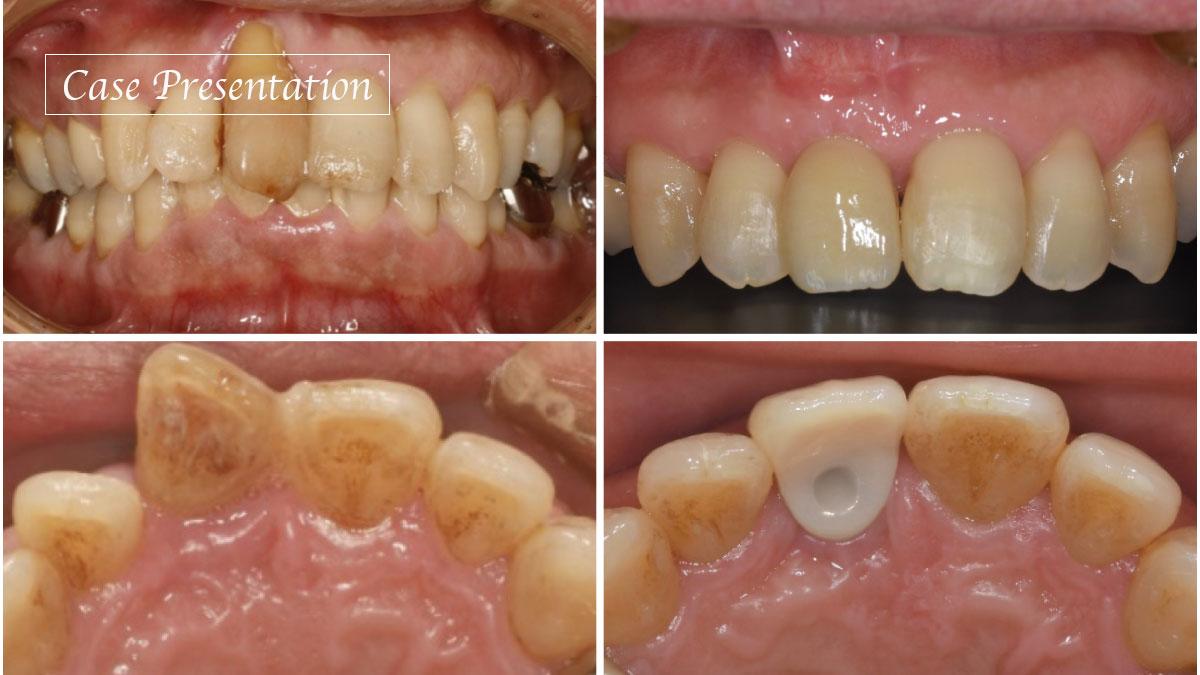 上顎前歯部インプラント治療における審美的なリスクの判定と術後評価を考察するの画像です