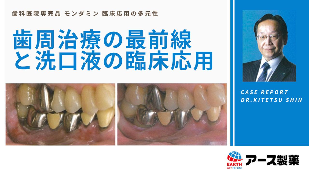 歯周治療の最前線と洗口液の臨床応用の画像です
