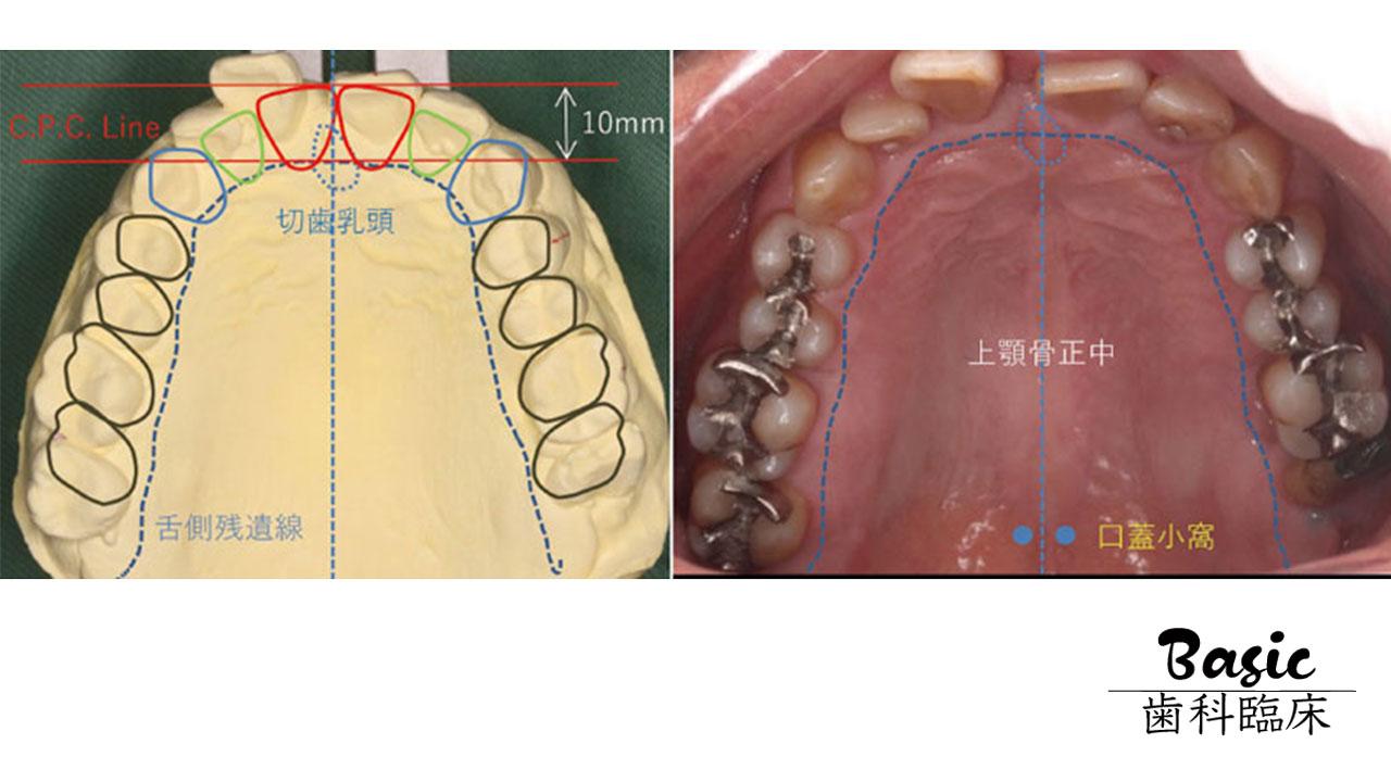 【赤坂会プロデュース】 日常臨床の診査・診断をアップグレードしよう② 模型診査の画像です