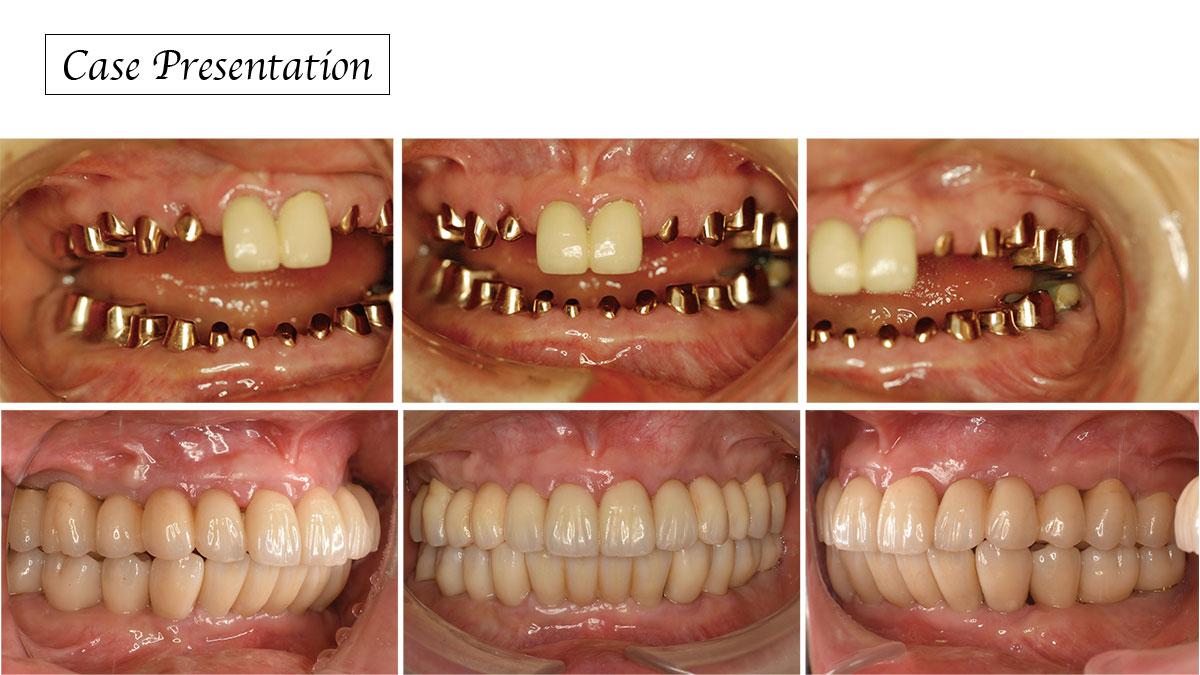 永久歯の先天性欠損を伴う咬合再構成症例の画像です