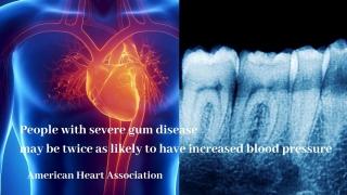 歯周病により高血圧症のリスクが2倍に 米国心臓協会の画像です